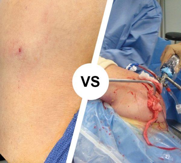 Shoulder Pain & Rotator Cuff Tears